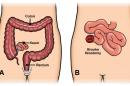 أعراض أمراض القولون وأنواعها وطرق علاجها