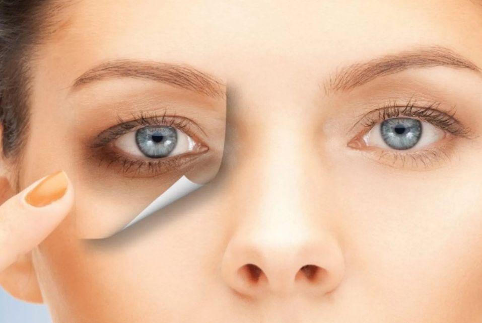 وصفات علاج الهالات السوداء حول العين