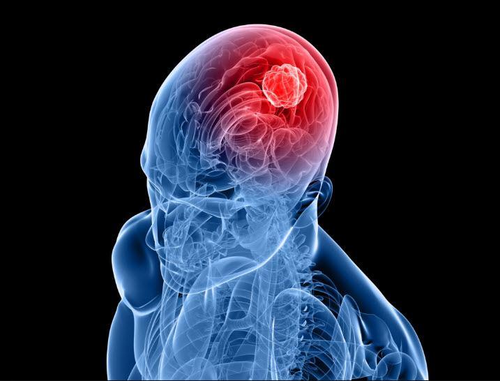 أعراض سرطان الدماغ