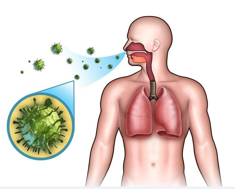 أعراض وعلاج التهاب الشعب الهوائية الحاد