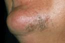 طرق زيادة شعر الذقن وتكثيف اللحية