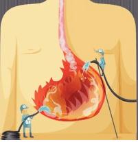 كيفية التخلص من حموضة أو حرقة المعدة