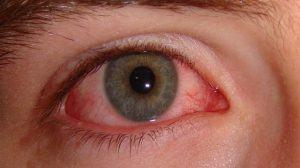 دليلك المبسط عن مشاكل العين وطرق علاجها
