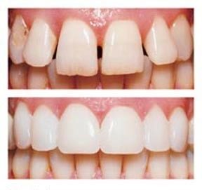(veneers) الفينير أو عدسات الأسنان