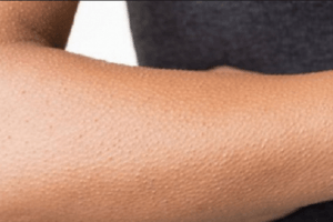 أسباب القشعريرة وآثارها على الجسم