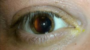 أسباب وأعراض ارتفاع ضغط العين