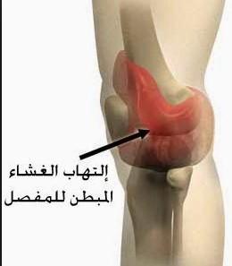 أعراض التهاب المفصل التنكسي