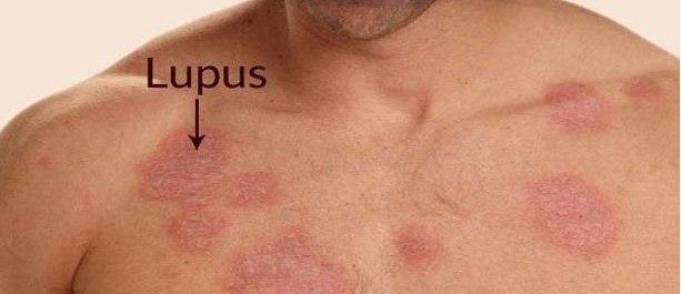 أعراض مرض لوبس