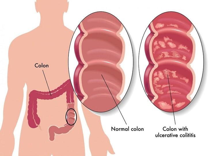 التهاب القولون التقرحي Ulcerative colitis