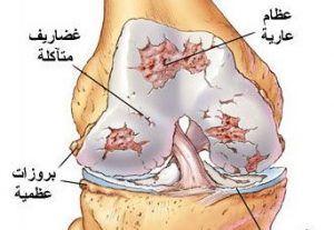 التهاب المفصل التنكسي