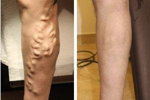 علاج الدوالي - دوالي الساقين