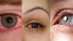 علاج طبيعي لجفاف العين