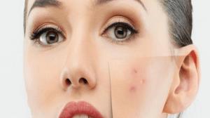 كيفية ازالة حبوب الوجه - حب الشباب