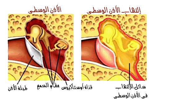 ما هو التهاب الأذن الوسطى؟