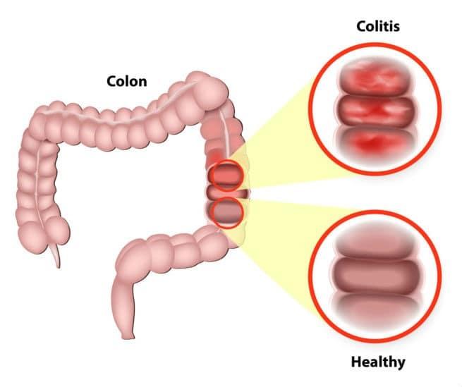 مرض التهاب القولون