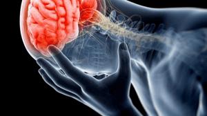 ارتجاج المخ أسبابه وأعراضه