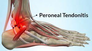 التهاب أوتار القدم