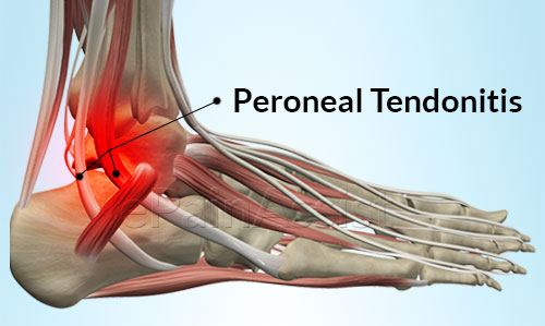 Home Remedies For Bursitis And Tendonitis