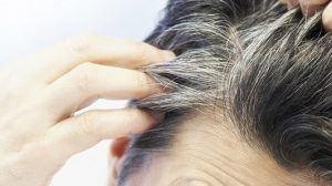 طرق التخلص من الشعر الأبيض