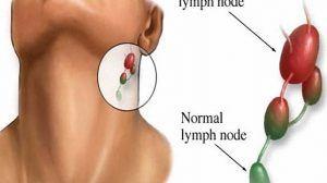 أسباب سرطان الغدد الليمفاوية