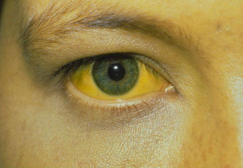 أعراض فيروس A