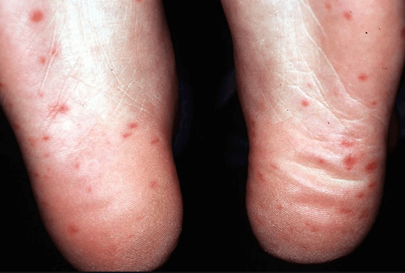 علاج حساسية باطن الكف والقدم