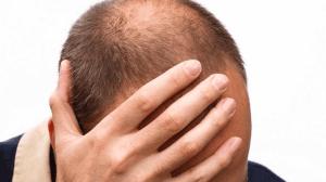 6 نصائح مهمة لتجنب الصلع وتفادي تساقط الشعر