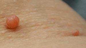 أسباب الزوائد الجلدية