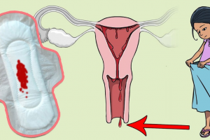 أسباب نزول نقط الدم بعد انتهاء الدورة الشهرية