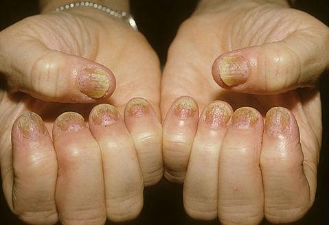 صدفية الأصابع