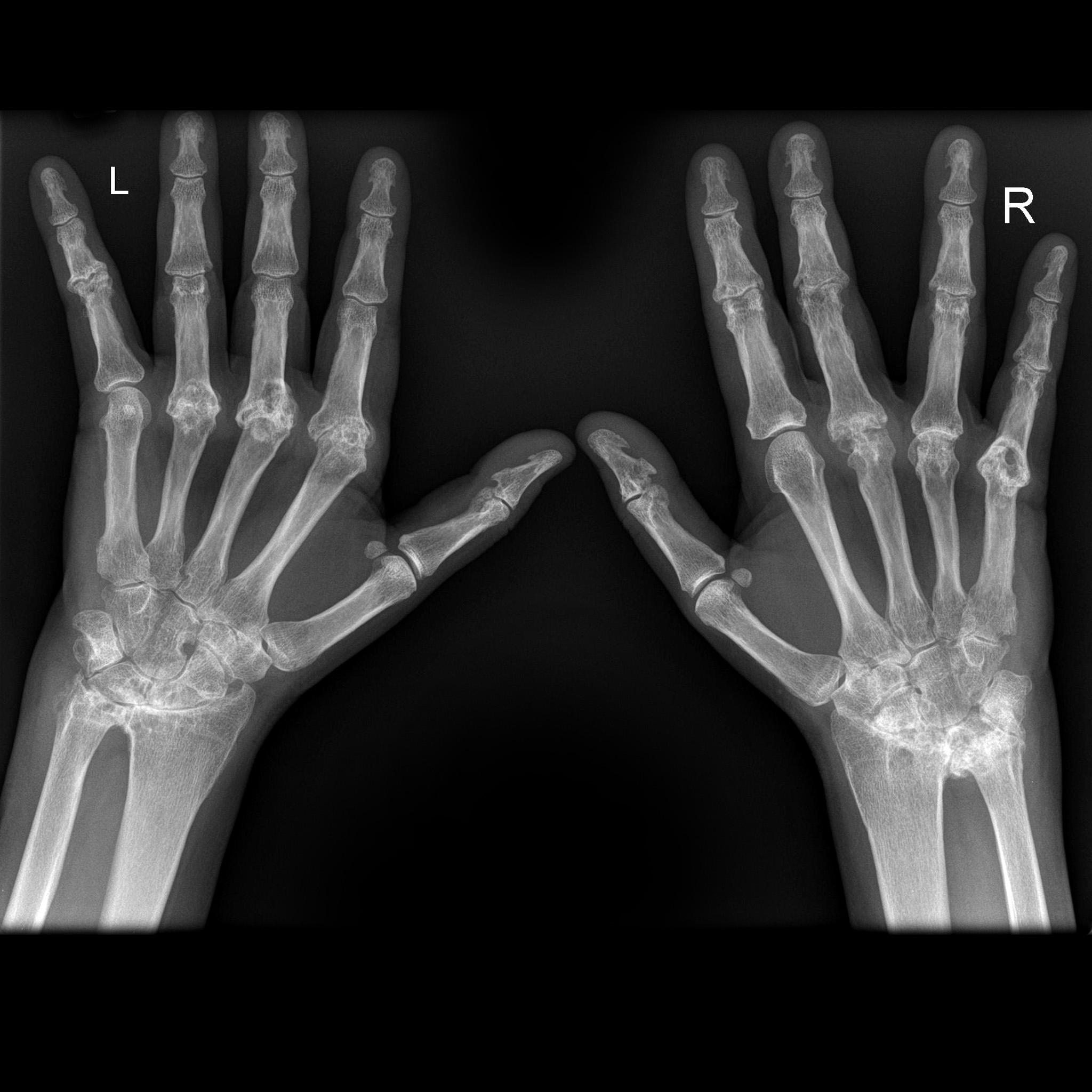 استخدام الأشعة السينية لتشخيص المرض