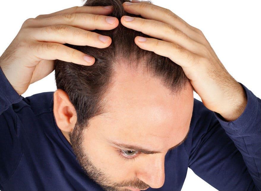 الحماية من تساقط الشعر