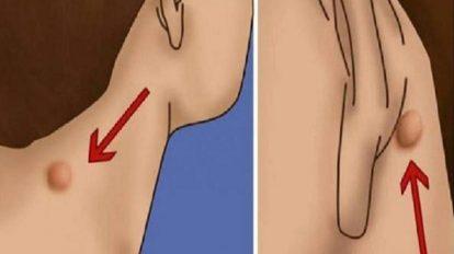 طرق علاج الأكياس الدهنية بدون جراحة