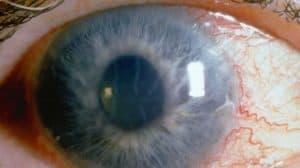 اعراض المياه الزرقاء أو الجلوكوما