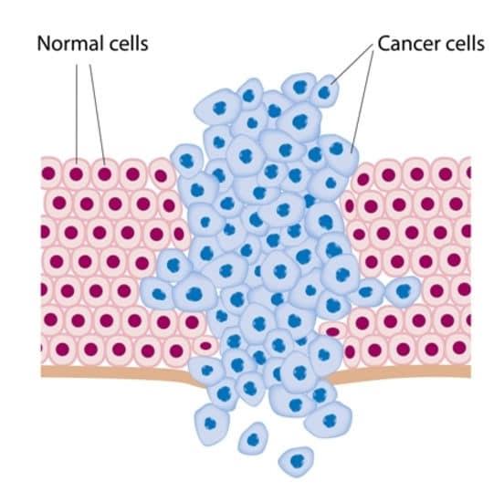 ما هو مرض السرطان