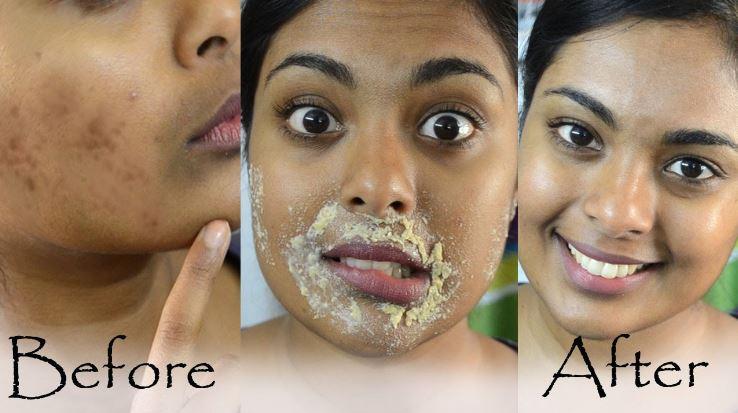 أسرع طرق التخلص من الاسمرار حول الفم وأسباب ظهورها