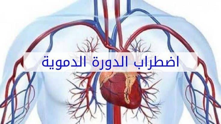 أعراض ضعف الدورة الدموية وطرق علاجها وأسبابها