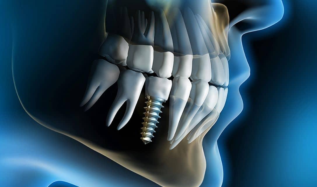 تعرف إلى كل شيء عن زراعة الاسنان