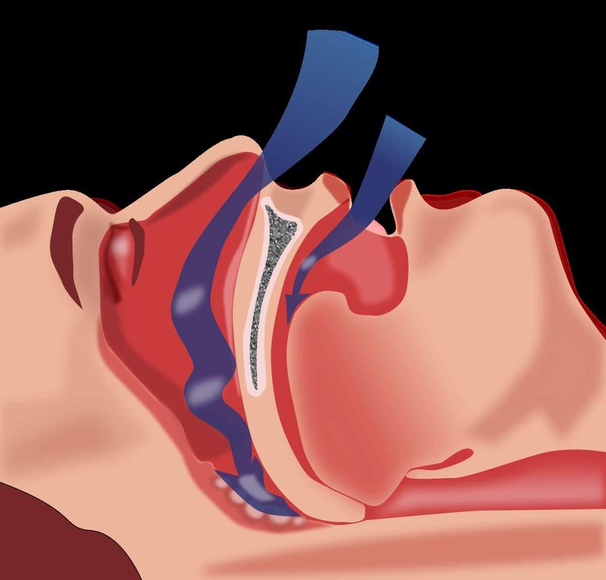 متلازمة انقطاع التنفس اثناء النوم ... الشخير
