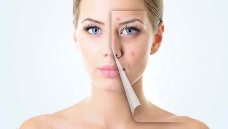 علاج مشاكل البشرة الدهنية ونصائح طبية للعناية بها