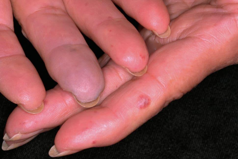 مرض رينو الثانوي Secondary Raynaud s syndrome