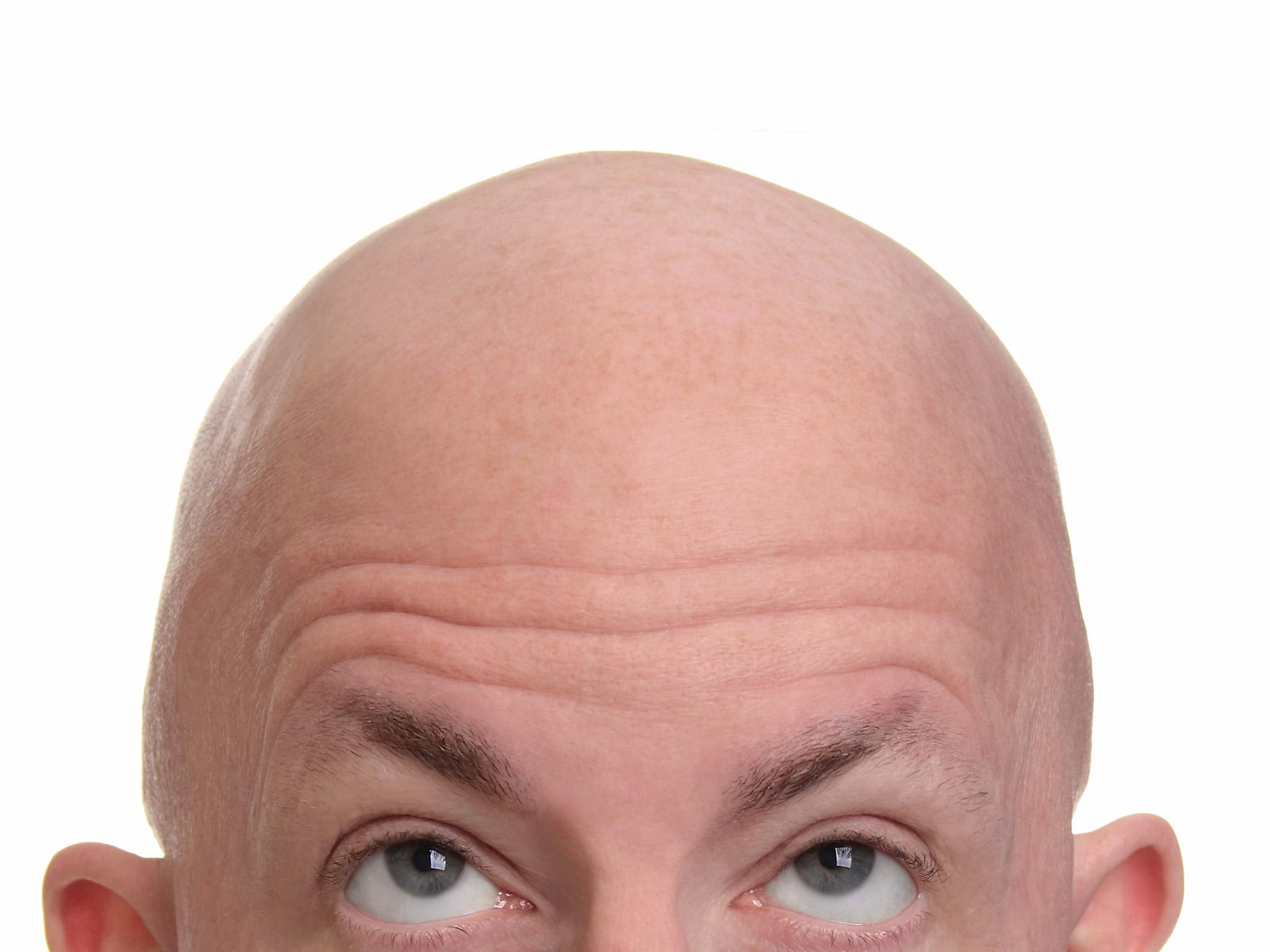 بخاخ نيوكسيديل لعلاج الصلع وتساقط الشعر