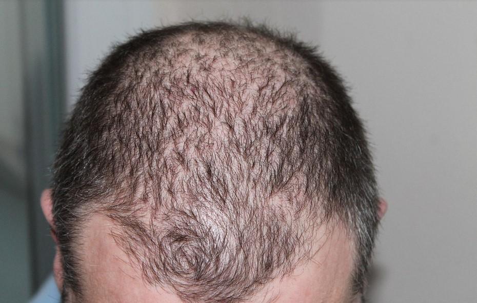 يؤدي الضغط النفسي إلى تساقط الشعر