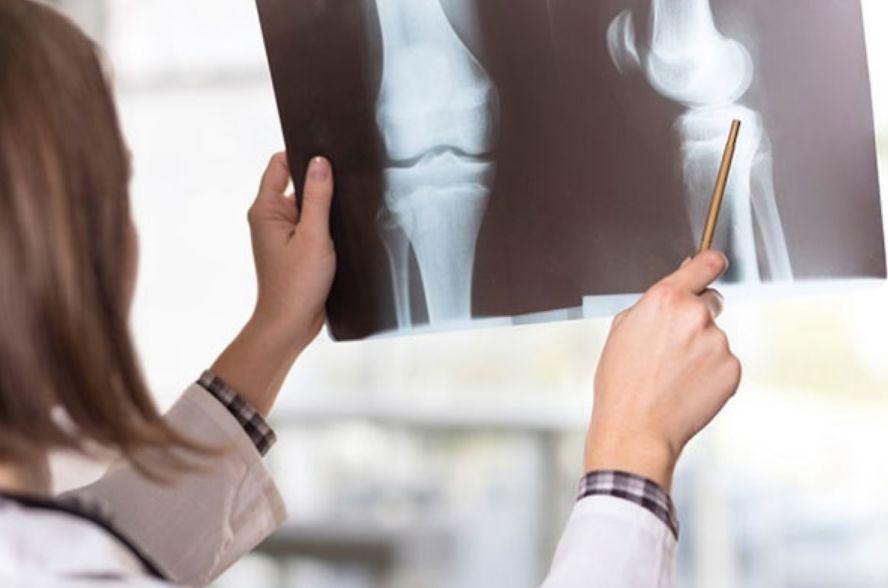 فوائد حب الرشاد للعظام