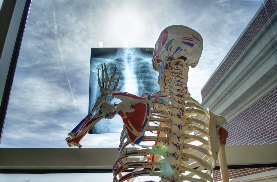 6 أشياء تؤذي عظامك .. تعرف عليها