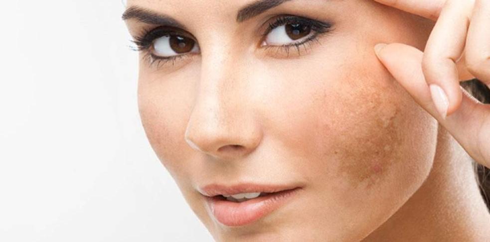 العوامل التي تؤدي إلى ظهور الكلف على الوجه