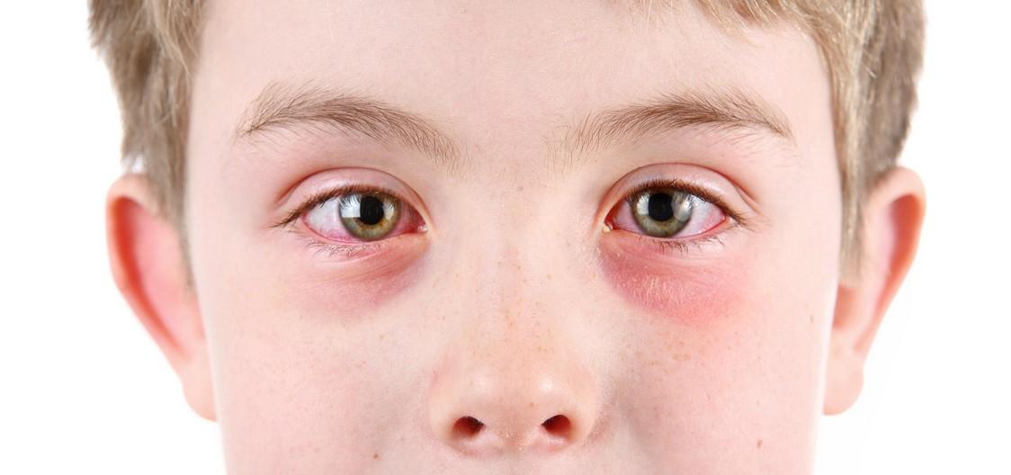 أسباب سواد تحت العين للأطفال 7