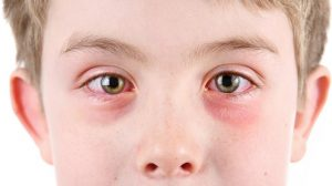 حساسية العين في الربيع عند الأطفال أسبابها وطرق الوقاية منها