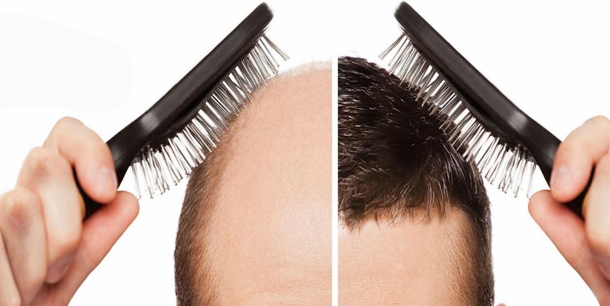 كل ما تود معرفته عن عمليات زراعة الشعر وتكاليفه