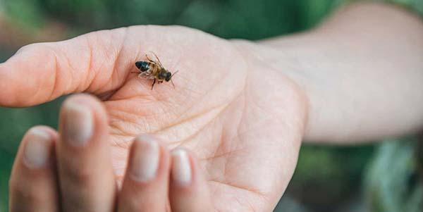 علاج لسعة النحل